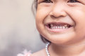 Girl with a friendly smile and tooth decay Royalty Free Stock Photo