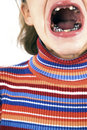 Girl with teeth problem Royalty Free Stock Images