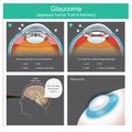 Glaucoma. Aqueous humour fluid exits and flow to canal of schlemm human eyes. Illustration. Royalty Free Stock Photo