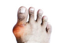 Gout of the big toe isolate on white background Royalty Free Stock Image