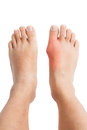 Gout inflammation on the right foot a pair of feet with is deformed as well due to Royalty Free Stock Photography
