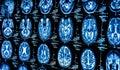 Grupo de gato pruebas de hombre cerebro