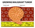 Growing malignant tumor Royalty Free Stock Photo
