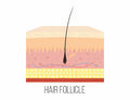 Hair follicle. Human skin layers with hair follicle inside Royalty Free Stock Photo