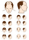 Hair loss Stock Photos