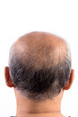 Hair loss bald man isolated on white background Stock Image