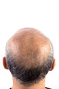 Hair loss bald man isolated on white background Royalty Free Stock Photo