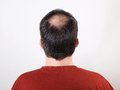 Hair loss male head with thinning or alopecia Royalty Free Stock Photos