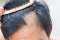 Hair loss Royalty Free Stock Photo