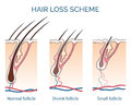 Hair loss scheme growth problem health vector illustration Royalty Free Stock Photography