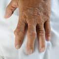 Hand of gout patient fingers patients with Royalty Free Stock Images
