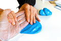 Hand physiotherapy to recover a broken finder medical Royalty Free Stock Photo