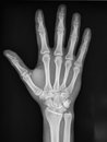 Hand radiography scaphoid fracture black and white Stock Photo