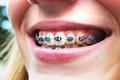 Happy braces nothing like getting a beautiful smile with the help of and the fun colors along the way Stock Photo
