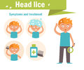 Head lice. Symptoms and treatment Royalty Free Stock Photo