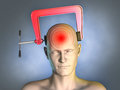 Headache head squeezed by a clamp digital illustration Stock Photos