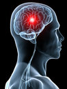 Headache / migraine Royalty Free Stock Photography