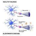 Healthy cell and neurons with Alzheimer`s disease. Tau hypothesi Royalty Free Stock Photo