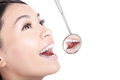 Healthy woman teeth with a dentist mouth mirror Royalty Free Stock Photo