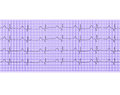 Heart analysis electrocardiogram graph ecg Stock Photos