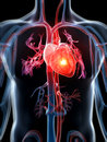 Heart attack d rendered illustration Royalty Free Stock Photography