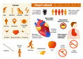 Heart attack infographic Royalty Free Stock Photo