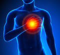 Heart attack male thorax pain Stock Image