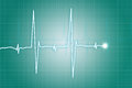 Heart beat cardiogram Royalty Free Stock Photo