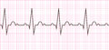 Heart beat. Cardiogram. Cardiac cycle Royalty Free Stock Photo