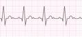 Heart beat. Cardiogram. Cardiac cycle