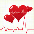 Heart Beat Diagram Stock Photos