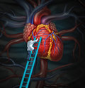 Heart doctor therapy health care and medical concept with a surgeon or cardiologist climbing a ladder to monitor and inspect the Stock Photography