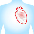 Heart injury the on a blue background illustration Stock Photos