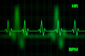 Heart Rate Graph Background Royalty Free Stock Photo