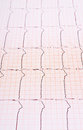 Heart rhythm chart background usage Stock Images