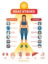 Heat stroke vector illustration. Exhaustion symptoms labeled medical list.