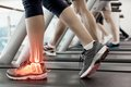 Highlighted ankle of woman on treadmill digital composite Royalty Free Stock Images
