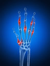 Highlighted arthritic hand Royalty Free Stock Photography