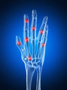Highlighted arthritic hand Royalty Free Stock Photos