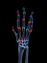 Highlighted arthritic hand Royalty Free Stock Image