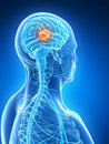 Highlighted brain tumor d rendered illustration Stock Photo