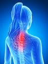 Highlighted neck d rendered illustration of a painful Royalty Free Stock Image