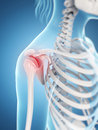 Highlighted shoulder joint d rendered illustration of a inflamed Royalty Free Stock Photos