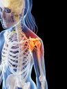 Highlighted shoulder joint d rendered illustration of a painful Stock Images