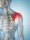 Highlighted shoulder joint d rendered illustration of a painful Stock Photo