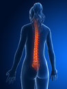 Highlighted spine d rendered medical illustration painful Royalty Free Stock Photos