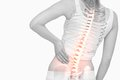 Highlighted spine of woman with back pain
