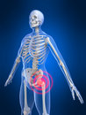 Hip inflammation Stock Images