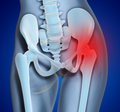 Hip Pain Stock Image