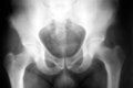 Hip xray Royalty Free Stock Photo